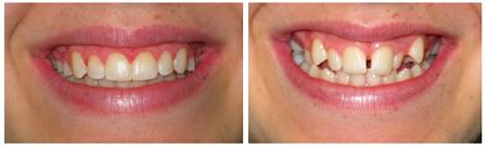 תוצאת טיפול יישור שיניים על ידי סמכים שקופים